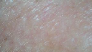 白色光 効果画像 皮膚表面